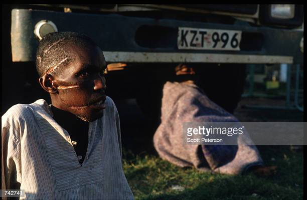 An unidentified Tutsi man displays slashes on his face and head June 3 1994 in Rwanda The Tutsis entered Rwanda from exile in Uganda after the...