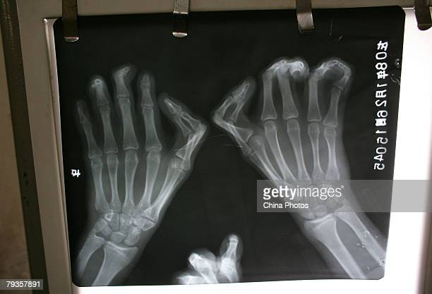 An xray of a patient's hands with webbed fingers at Hongling Hospital on January 29 2008 in Chongqing Municipality China A father and son from...