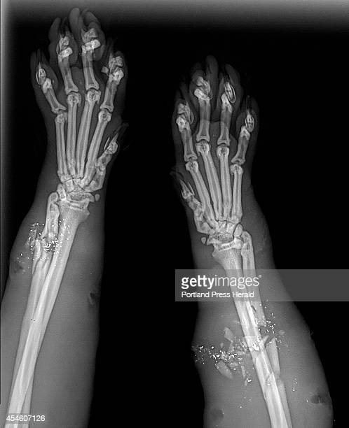 An Xray of Clark the cat shows the shattered bones in his front legs at the Animal Refuge League in Westbrook Wed September 3 2014 Pellets from a...