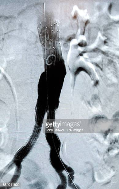An xray of the aorta blood vessel with a stent taken on the angiogram machine at the angiography suite at University College Hospital in central...