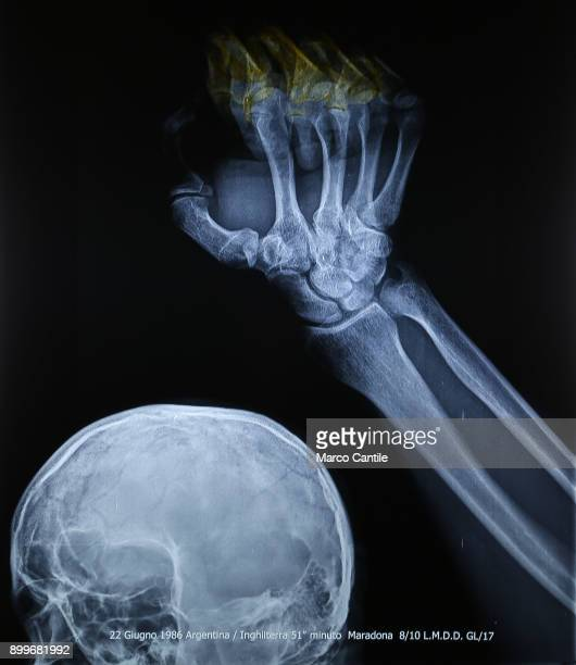 An Xray of the head and part of the hand and arm of Diego Armando Maradona in the museum of madness
