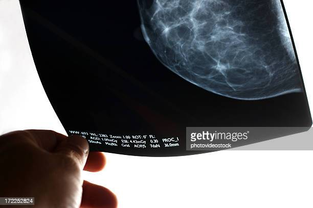 analyzing the mammogram - mammogram stock pictures, royalty-free photos & images