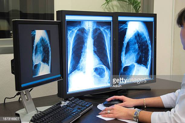analyzing x-ray or scann radiography - osteopath stock photos and pictures