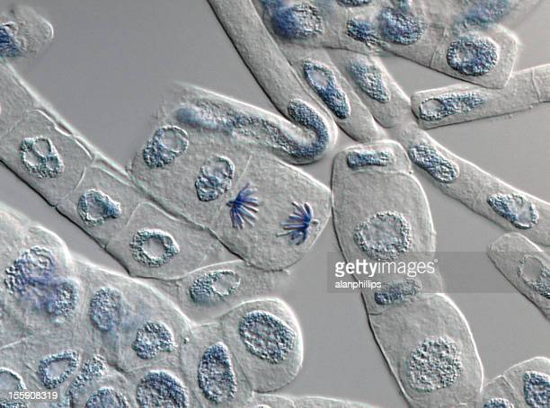 Anaphase in plant cells as seen with a microscope