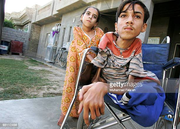 Anas Hamed and his sister Inas who suffer from birth defects are pictured on November 12 2009 in the city of Falluja west of Baghdad Iraq Birth...