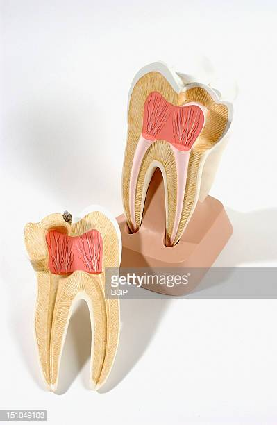 Anatomic Model Of An Human Upper Molar Anterior View Of Frontal Section The Upper Molar Located In The Back Of The Jaw Chews And Grinds Food It Has...