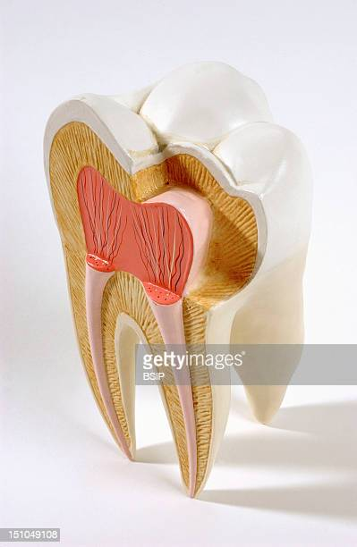 Anatomic Model Of An Human Upper Molar In Frontal Section The Upper Molar Located In The Back Of The Jaw Chews And Grinds Food It Has For That Four...