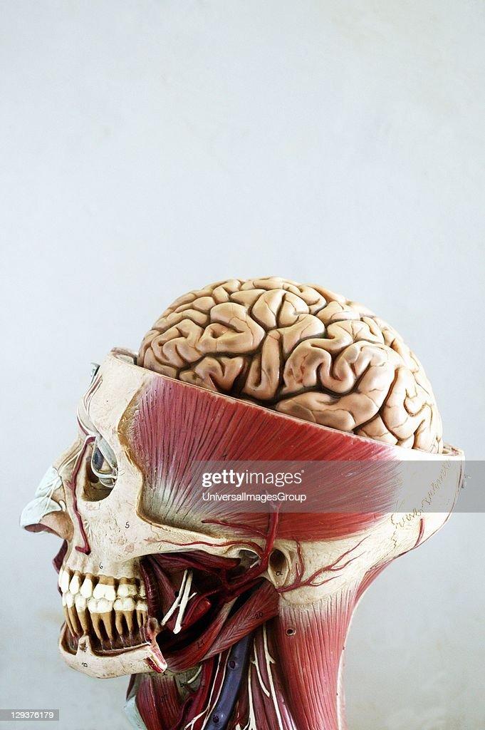 Anatomical Model Of Head Top Half Of Head Is Sliced Open