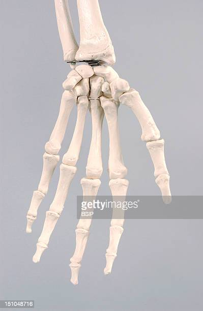 Anatomical Model Of The Hand Of An Adult Human Skeleton The Skeletal Structure Of The Hand Is Made Up Of The Carpal And Metacarpal Bones And The...