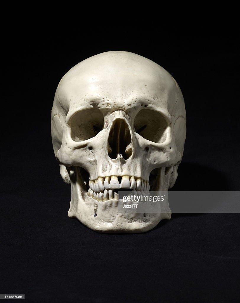 Real Human Skull No Jaw