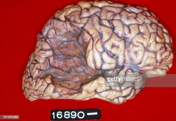Anatomy Cerebral Softening