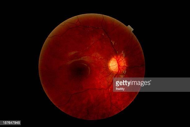 Anatomie der ein Menschliches Auge