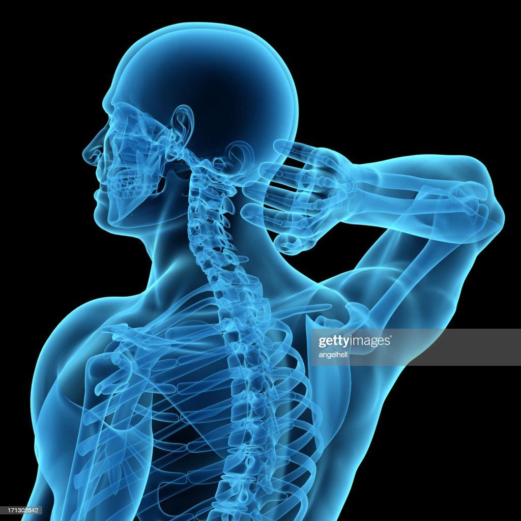 Anatomie Des Mann Mit Schmerzen Nacken Und Kopf Stock-Foto | Getty ...