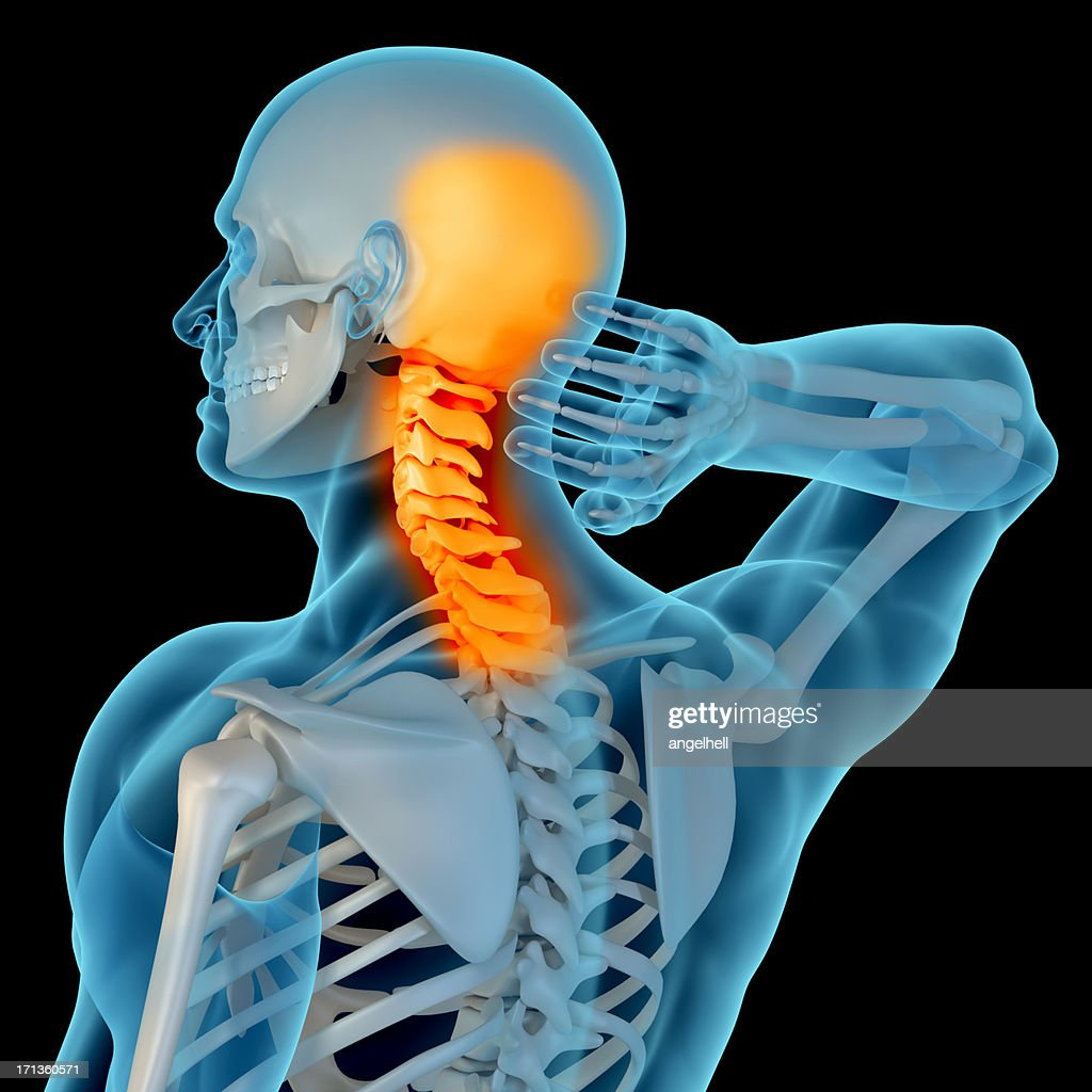 Beautiful Neck Pain Anatomy Embellishment - Physiology Of Human Body ...