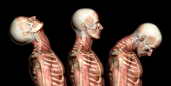 Anatomy of human body, showing neck injuries like whiplash effect 636100314