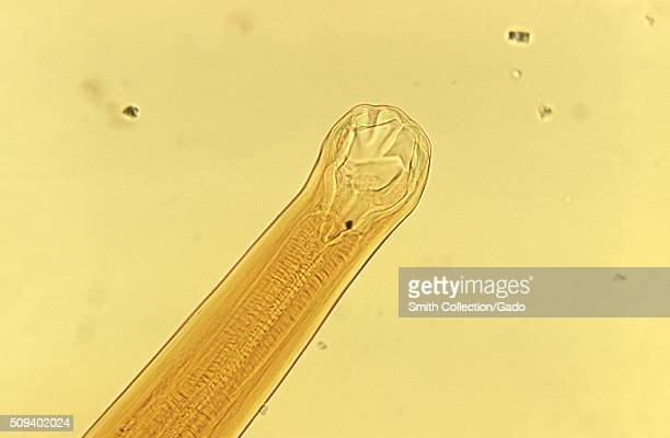 Ancylostoma braziliense mouth parts Ancylostoma braziliense mouth parts Hookworm parasite Image courtesy CDC/Dr Mae Melvin 1973