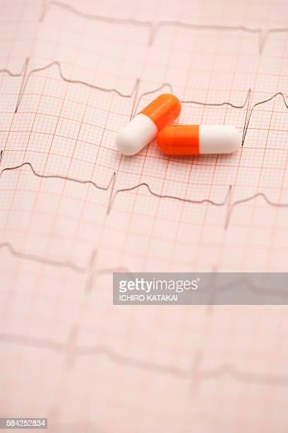 EKG and capsules