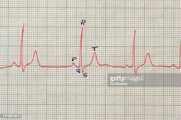 normal electrocardiogram (ecg or ekg), normal sinus rhythm and identification of waves - heart ventricle stock pictures, royalty-free photos & images