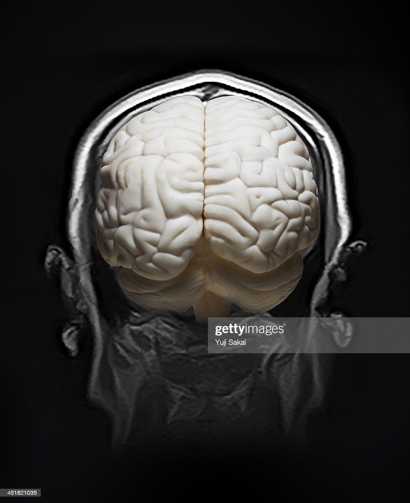 MRI and model of human brain : Stock Photo