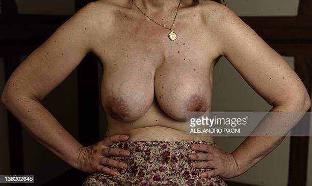 Andrea Damonte shows her mammary glands deformed and injured by the successive mammary implant of the Poly Implant Prothese she had since 2007 in...