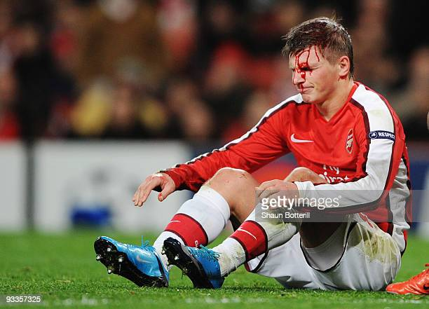 Andrei Arshavin of Arsenal leaks blood from a head injury during the UEFA Champions League group H match between Arsenal and Standard Liege at...