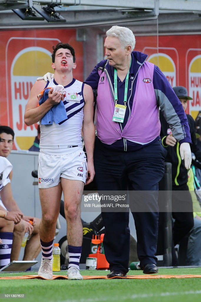 Andrew Brayshaw of the Dockers leaves the field with a suspected broken jaw from contact with Andrew Gaff of the Eagles during the round 20 AFL match between the West Coast Eagles and the Fremantle Dockers at Optus Stadium on August 5, 2018 in Perth, Australia.