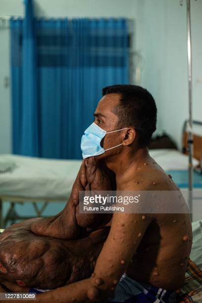 Andriadi Putra, at seen at Accu Plast Hospital before surgery in Medan, North Sumatra. A MAN who was living with 30 kilograms of tumours hanging from...