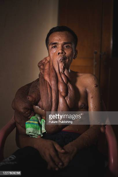 Andriadi Putra at seen at his house after surgery in Medan North Sumatra A MAN who was living with 30 kilograms of tumours hanging from his body has...