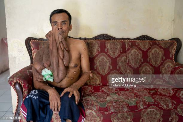 Andriadi Putra at seen at his house after surgery in Medan, North Sumatra. A MAN who was living with 30 kilograms of tumours hanging from his body...