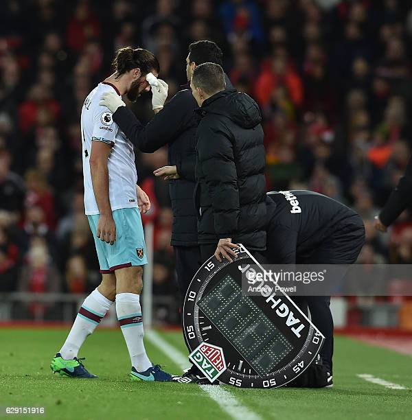 Andy Carroll of West Ham is treated after suffering a cut on his head during the Premier League match between Liverpool and West Ham United at...