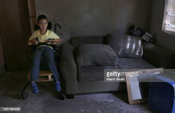 Angel Miguel Torres who suffers multiple symptoms including cerebral palsy at home in Anasco Puerto Rico on August 11 2018 His mother Brenda Lopez is...