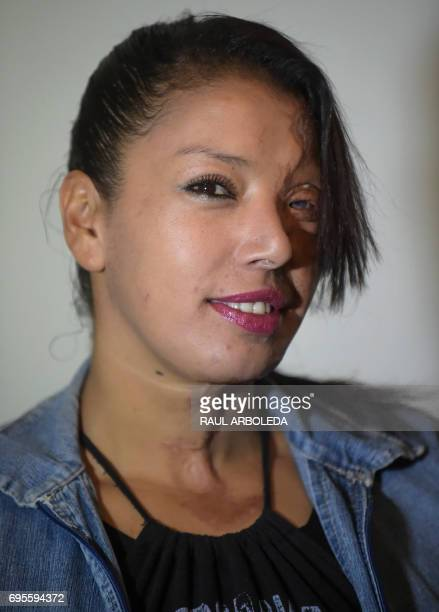 Angeles Borda a 32yearold Colombian woman who survived an acid attack ten years ago poses for a photo at her home in Soacha near Bogota Colombia on...