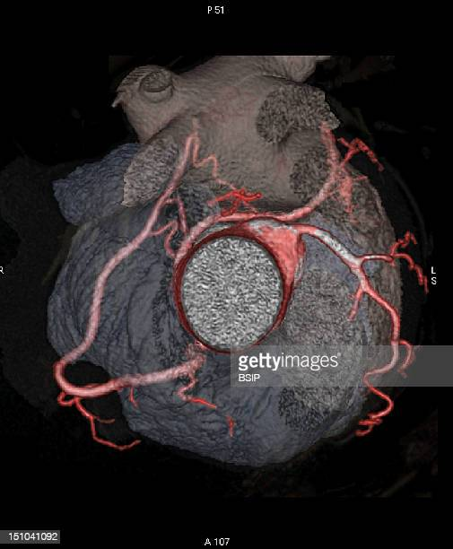 Angiography Scanner 3D Superior View Of The Aortic Root And Coronary Arteries Spider View The Heart Is In Transparency