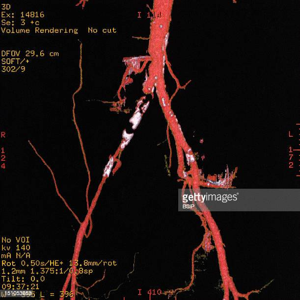 Angiography Scanner An Iliac Thrombosis Blood Clot Formed In The Iliac Vein Frequently Leading To The Apparition Of Pubic Varicose Veins