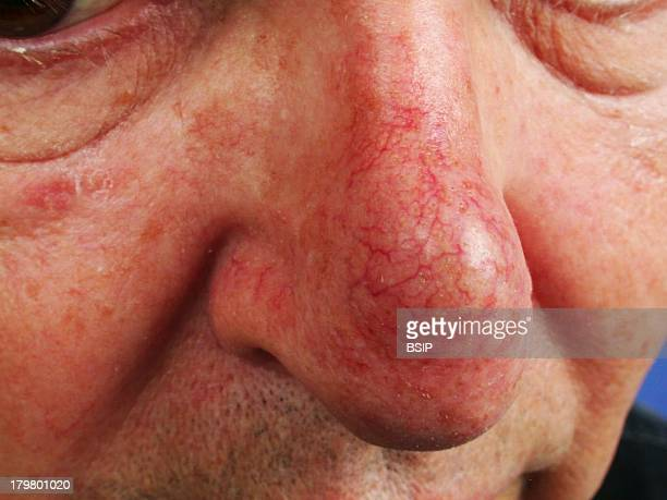 Angioma, Benign endovascular angiomatous lesion.