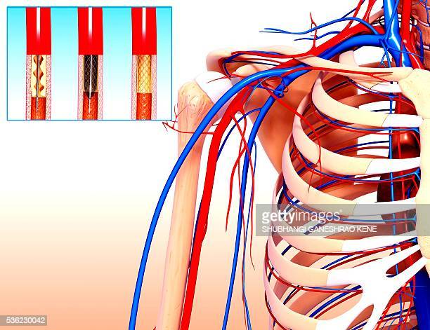 Angioplasty, computer artwork.