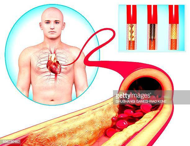 angioplasty, computer artwork. - catheter stock photos and pictures