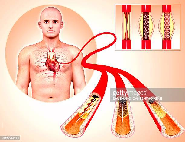 angioplasty, computer artwork. - stent stock photos and pictures