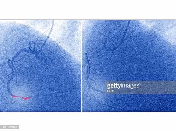 Angioplasty Of The Coronary Artery Following A Myocardial Infarction Angioplastry By Balloon Catheter