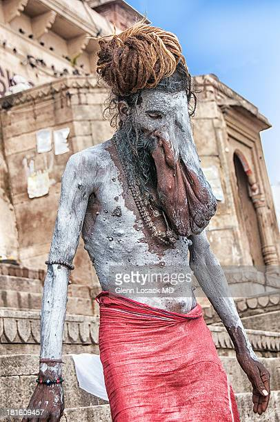 Another look at this amazing Sadhu with an unbelievable facial deformity appearing similar to an elephant, thus the name Ganesh the Elephant god in...