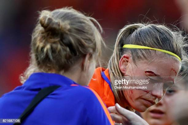 Anouk Dekker of Netherlands gets medical treatmaent during the Group A match between Belgium and Netherlands during the UEFA Women's Euro 2017 at...