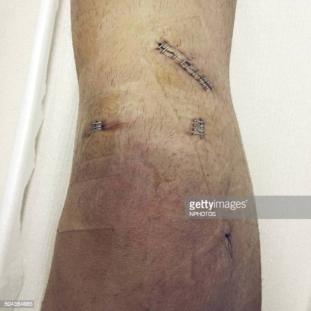 anterior cruciate ligament (acl) - ligamento cruzado anterior fotografías e imágenes de stock