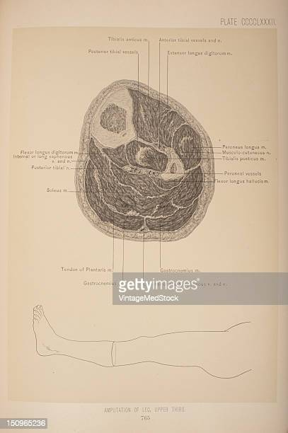 Anteroposterior flap method 1903 From 'Surgical Anatomy The Treatise of the Human Anatomy and Its Applications to the Practice of Medicine and...