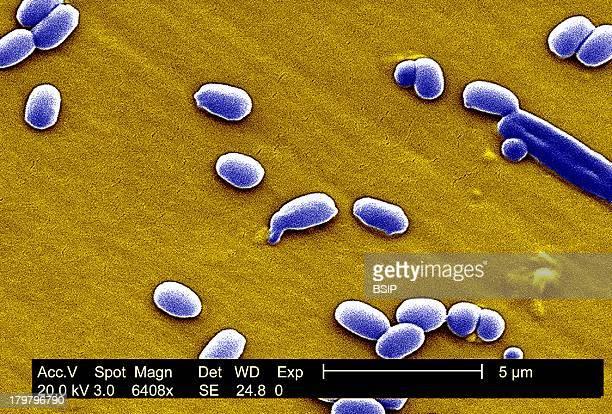 Anthrax Bacterium Spore Sem