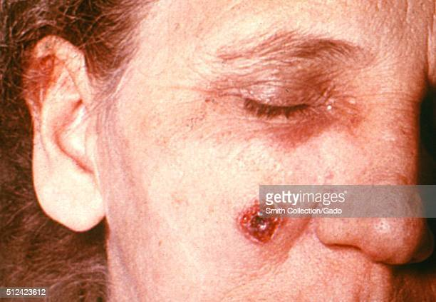 Anthrax skin of face 11th day 53 year old female employed 10 years in the spinning department of a goathair processing mill Cutaneous anthrax lesion...