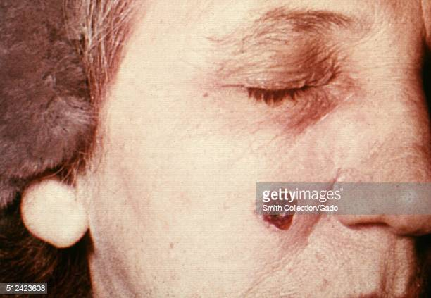 Anthrax skin of face 13th day 53 year old female employed 10 years in the spinning department of a goathair processing mill Cutaneous anthrax lesion...