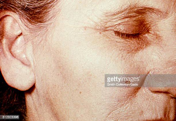 Anthrax skin of face 4th day 53 year old female employed 10 years in the spinning department of a goathair processing mill Cutaneous anthrax lesion...