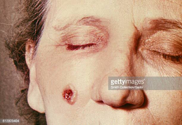 Anthrax skin of face 5th day 53 year old female employed 10 years in the spinning department of a goathair processing mill Cutaneous anthrax lesion...