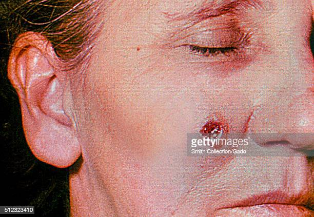 Anthrax skin of face 6th day 53 year old female employed 10 years in the spinning department of a goathair processing mill Cutaneous anthrax lesion...