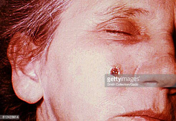 Anthrax skin of face 8th day 53 year old female employed 10 years in the spinning department of a goathair processing mill Cutaneous anthrax lesion...